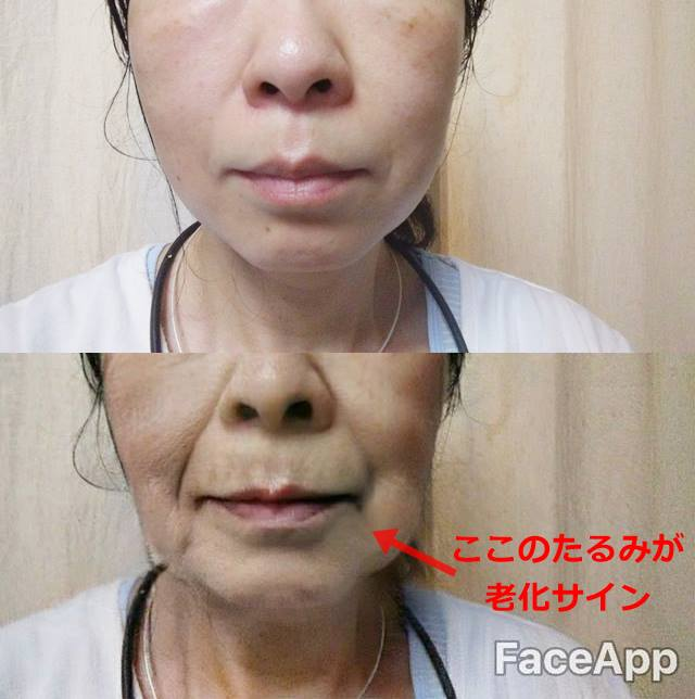 老け顔との比較